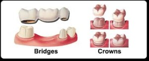 bridge and dental crown